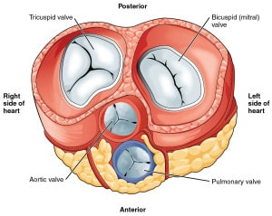 heart disease heart valve replacement